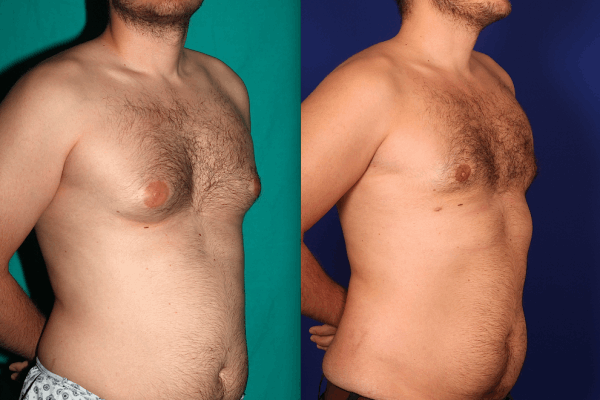 Gynecomastie Before After