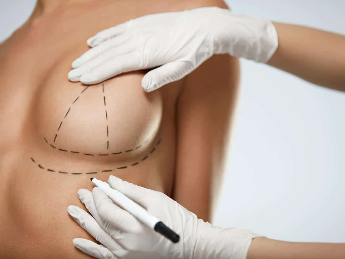 Breast Lift (Mastopexia) Surgery in Turkey