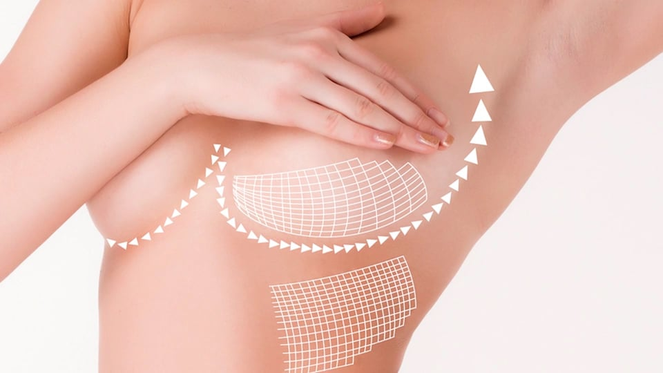 About Breast Lift Surgery